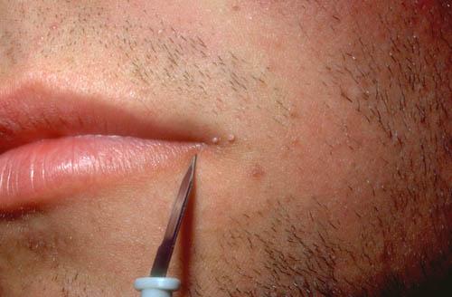 Infeksionet seksualisht te transmetueshme-HPV
